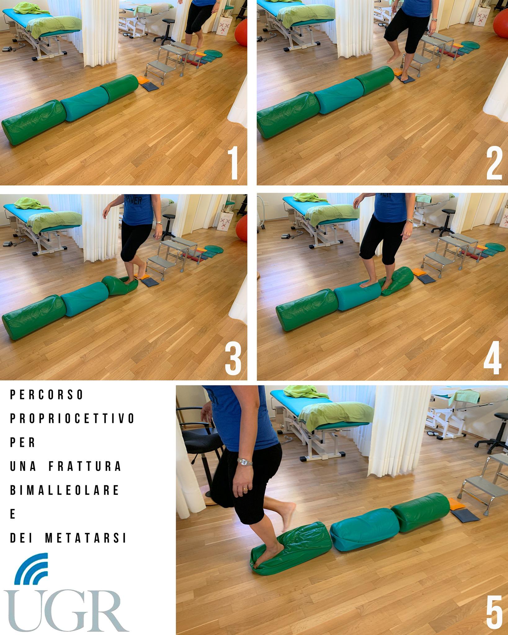 Percorso propriocettivo per una frattura bimalleolare e dei metatarsi.